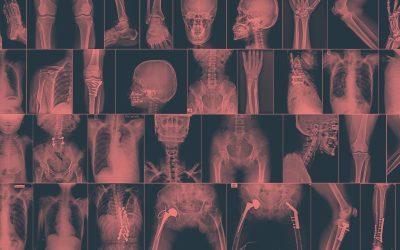 La importancia de la imagen clínica en fisioterapia